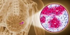 câncer-de-mama-formação